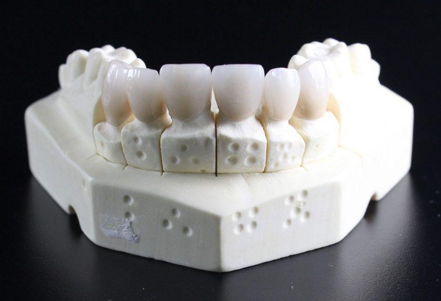 implanti-za-zube