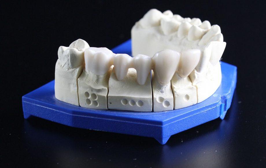 Kada se ugrađuju i zašto su sve dobri zubni implanti?