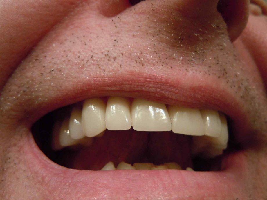 Saveti dečijih stomatologa za održavanje oralne higijene dece