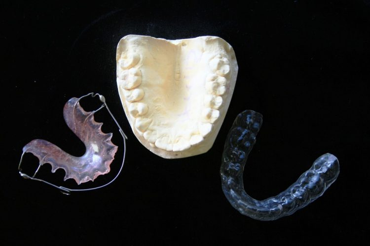 zamena-zuba