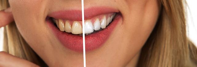 Koliko često treba ići na kontrolni pregled kod stomatologa?