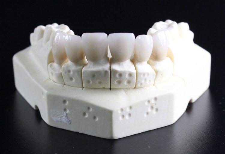 bezmetalne-krunice-za-zube