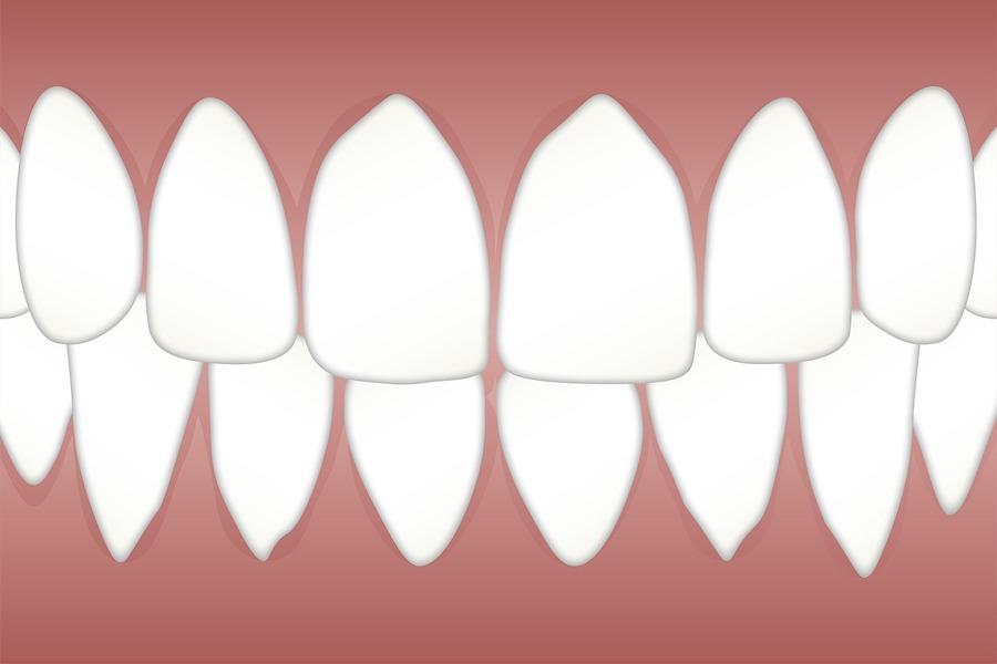 Parodontopatija – simptomi, uzroci i lečenje