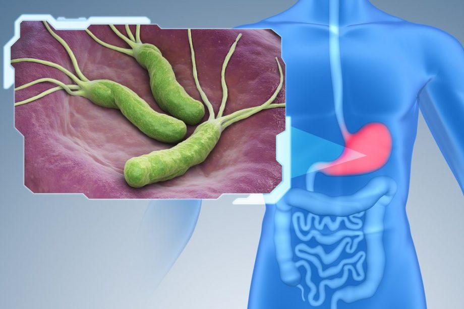 Muči vas gorušica? Možda imate heliko bakteriju!?